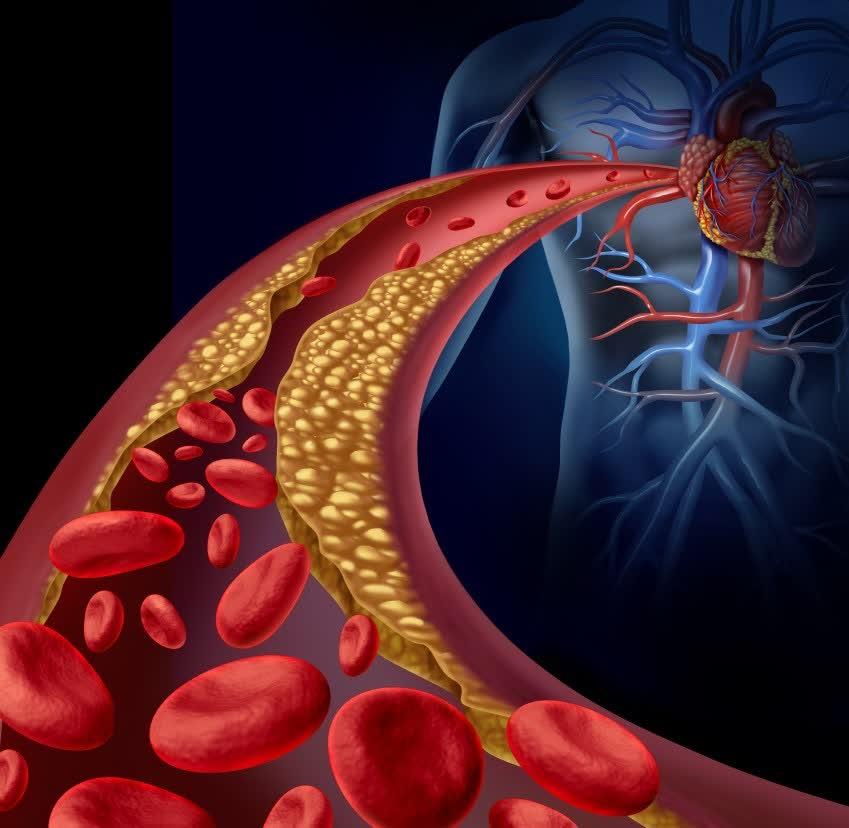 Cholesterolis neretai apgauna – kas ateina į pagalbą?